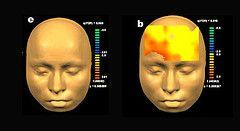 Компьютеры лучше врачей диагностируют болезни мозга
