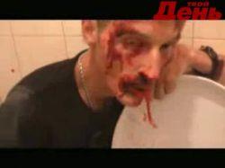 Паша Воля инсценировал собственное избиение