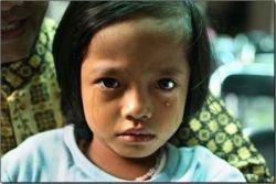 Традиционное женское обрезание в Индонезии (фото)