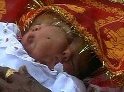 Индусы приняли двуликую девочку за реинкарнацию богини