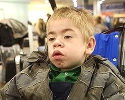 Системы для спасения детей с редкими болезнями в России нет