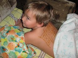 Обычная детская простуда может привести к потере слуха
