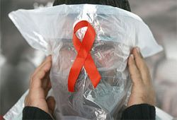 Ученые узнали, как ВИЧ проникает в живые клетки