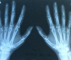 Боль в руках: болезни профессионалов