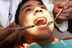 Стоматологи откажутся от пломб в пользу восстановления зуба