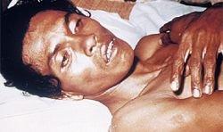 Вьетнам захлестнула холера