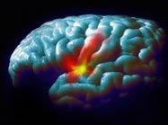 Болезнь Паркинсона может поражать пересаженные нервные клетки