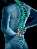Генетическая предрасположенность – главная причина боли в спине