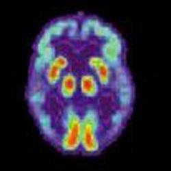 Американские ученые открыли лекарство, защищающее от радиации
