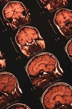 Самоизменение мозга - доказанный учеными факт