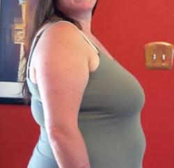 Поменялись критерии ожирения - индекс массы тела ненадежный критерий