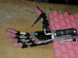 Новый протез Fluidhand сможет печатать на клавиатуре