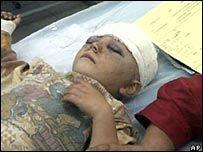 ООН: иракских детей используют как смертников