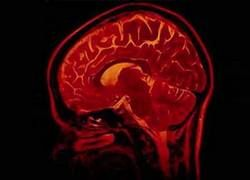 7 практических способов очистить голову от лишних мыслей