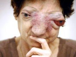 фото раковых больных