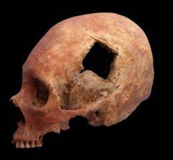 Древние инки делали сложные операции