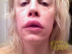Ужасы пластической хирургии (фото)