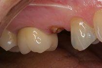 Ученые связали потерю зубов с несколькими видами рака