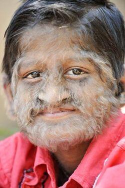 Индийский мальчик-оборотень (фото)