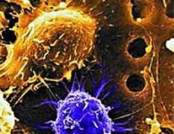Благодаря стволовым клеткам парализованный мужчина снова начал дышать самостоятельно