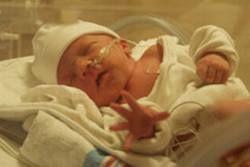 Врачи в США озабочены ростом числа преждевременных родов