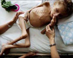143 миллиона детей в мире хронически недоедают