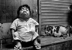 Самый маленький человек в мире из Индии