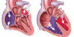 Найдена причина сердечно-сосудистых заболеваний