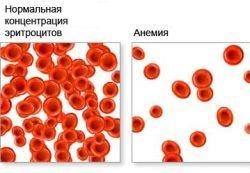 Что такое анемия и как ее избежать?
