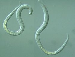 Американцев съедают черви и паразиты