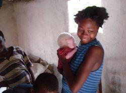 Почему альбиносов в Африке используют для жертвоприношений