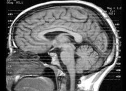 Ваш мозг вам лжет