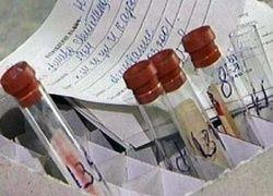 Число ВИЧ-инфицированных в Москве снизилось в 20 раз