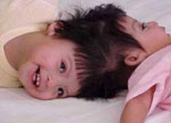 Хирурги из Саудовской Аравии разделили сиамских близнецов