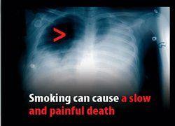 """Бороться \""""страшными картинками\"""" с курением - бессмысленно"""