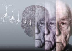 Ученые разработали лекарство от болезни Альцгеймера