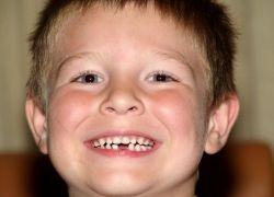 Молочные зубы: лечить или нет?