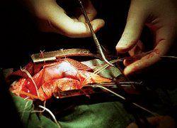 Операция на сердце в 99 лет становится реальностью