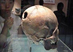 В каменном веке уже умели делать операции на черепе