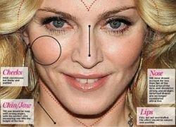 Пластические хирурги перекроили Мадонну