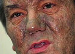 Чем болен Виктор Ющенко?
