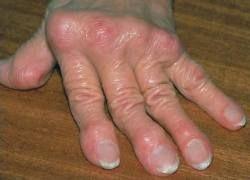 Ревматоидный артрит будут лечить клетками крови пациента