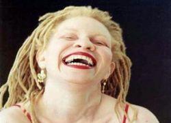 Альбиносы: дар или проклятье?