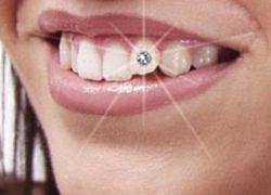 Что такое декоративная стоматология?
