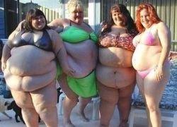 Ожирение повышает риск развития рака