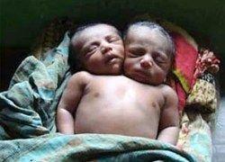 Из-за бедности родителей в Бангладеш умер двухголовый младенец
