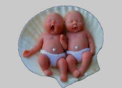 Сиамские близнецы росли один в другом