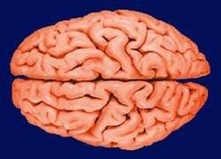 У наркоманов истончается кора головного мозга