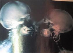 Создан гибрид фотокамеры и безопасного рентгеновского аппарата