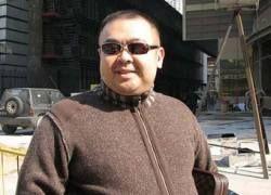 Сын Ким Чен Ира выписал из Парижа нейрохирурга
